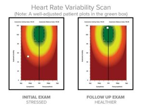 A Deep-Dive into Heart Rate Variability